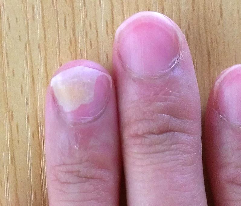 爪甲剥離症とは 原因 症状 治療法 爪甲剥離症 そうこうは